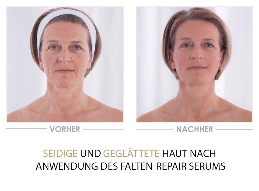 Falten Repair Serum - Vorher/Nachher