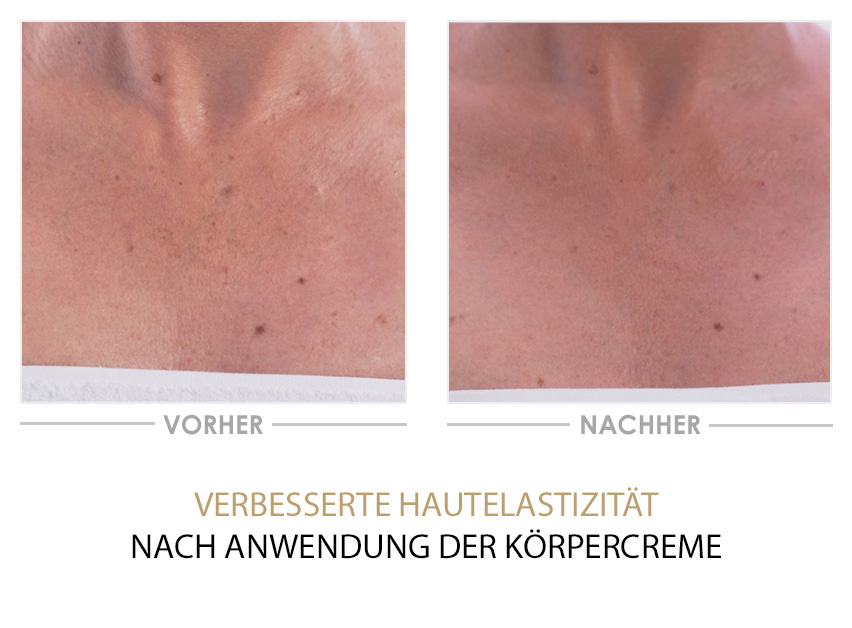 Phyto Intense Youth Activating Duo - Vorher/Nachher