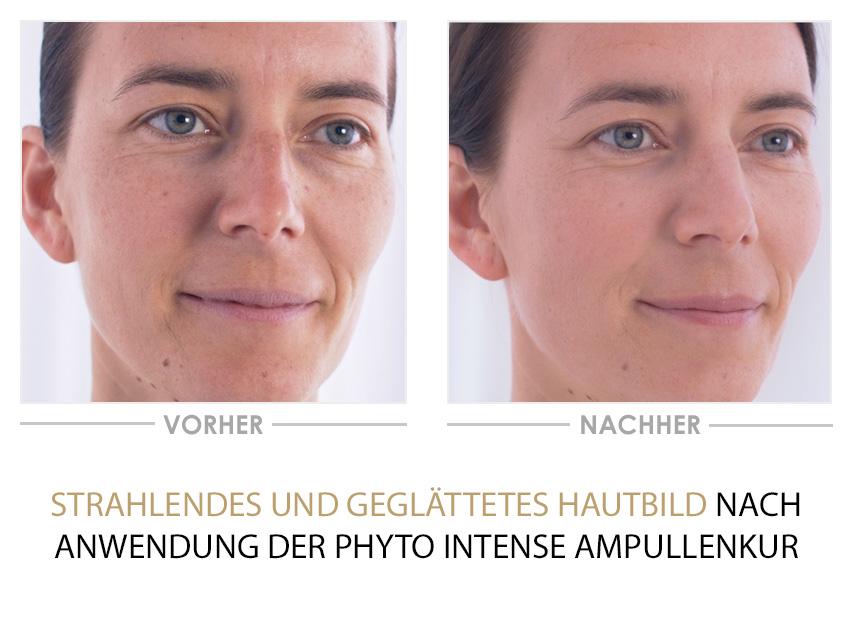 Phyto Intense Ampullenkur - Vorher/Nachher