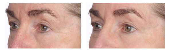 Flora Mare™ Augencreme Vorher-Nachher-Vergleich