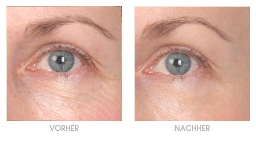 Aqua Intense Hyaluron Augencreme