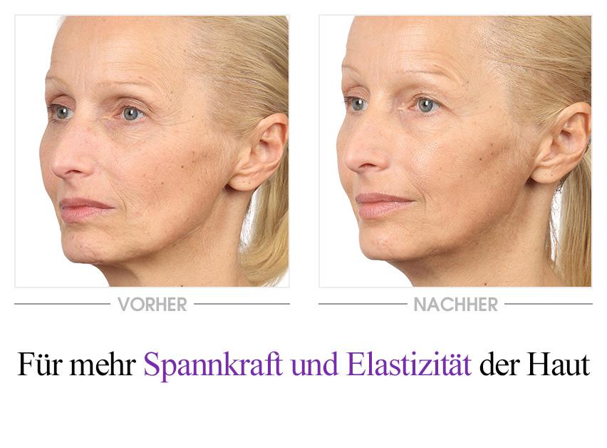 Collagen Boost 24H Creme Vorher-Nachher