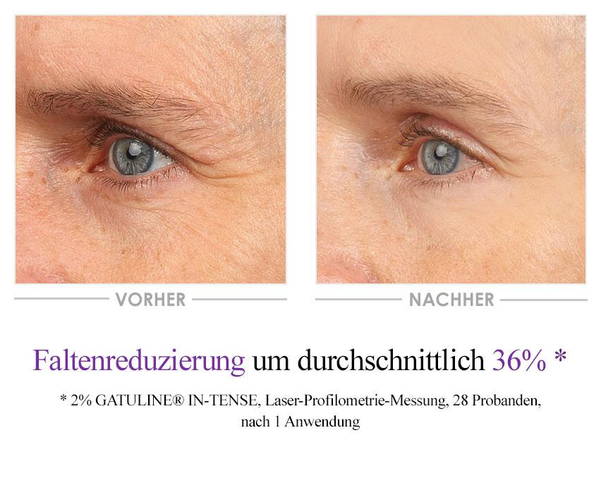 Collagen Boost Augencreme Vorher-Nachher