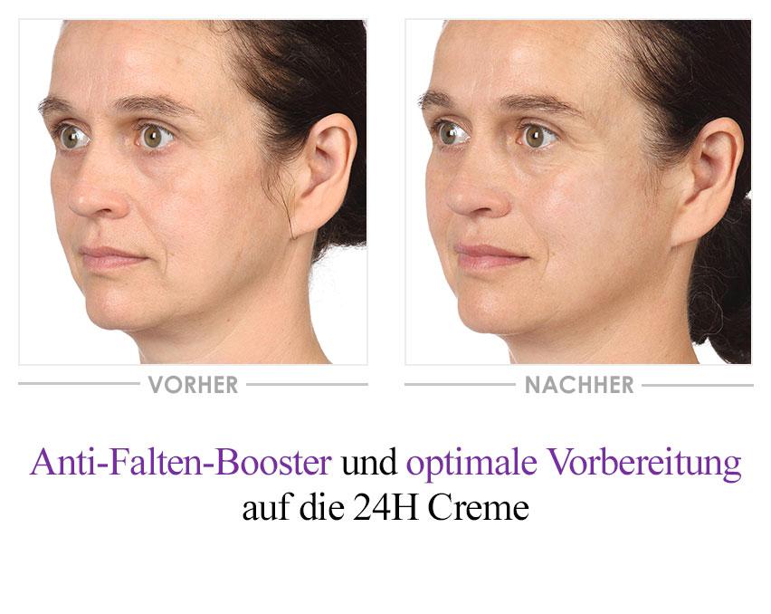 Collagen Boost Serum Vorher-Nachher