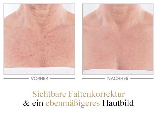 All-in-one Creme - Vorher/Nachher - Brust