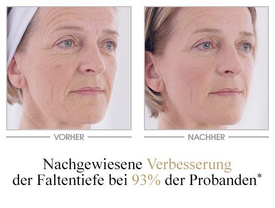 Falten-Repair Creme 24H - Vorher/Nachher