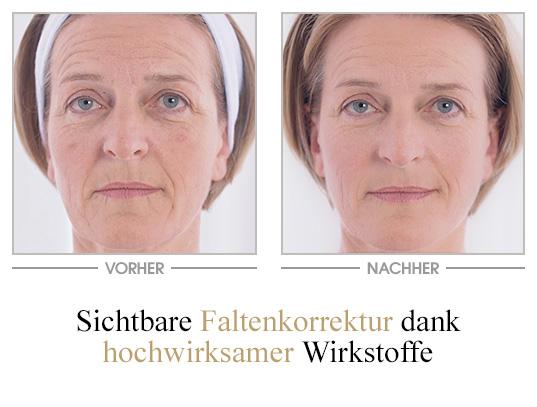 Falten-Repair Ampullenkur - Vorher/Nachher