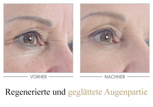 Falten-Repair Augenpflege_VN - Vorher/Nachher