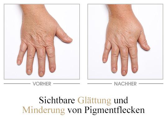 Glättende Handcreme - Vorher/Nachher