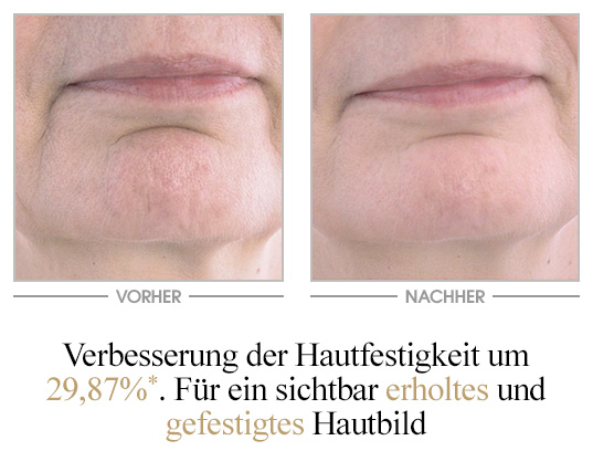 Global Anti-Age Phytoserum - Vorher/Nachher