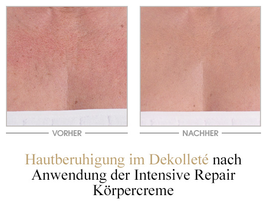 Intensive Repair Körpercreme - Vorher/Nachher