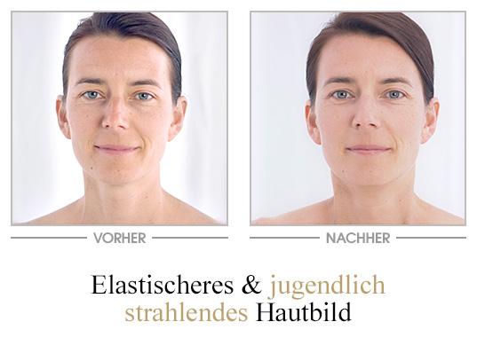 PhytoIntense Youth Activating Gesichtspflege - Vorher/Nachher