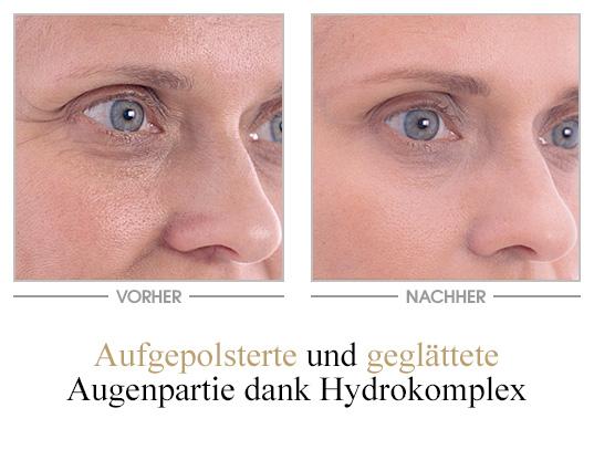 Ultra Feuchtigkeit Augenpflege - Vorher/Nachher