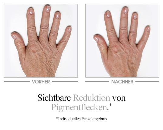 Illuminierende Handcreme Vorher-Nachher-Vergleich