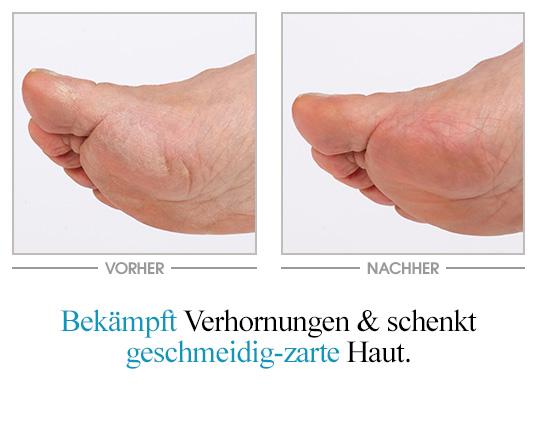 Flora Mare™ Fußpflege Vorher-Nachher-Vergleich