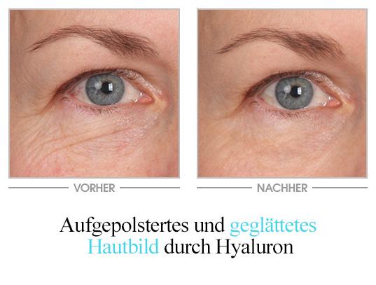 Aqua Intense Augencreme Vorher-Nachher