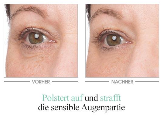 Hyaluron Rich Eye Balm - Vorher/Nachher