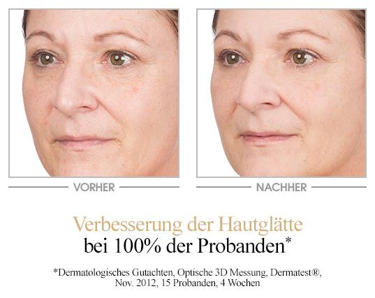 Resveratrol Premium Glättungsmaske Vorher-Nachher