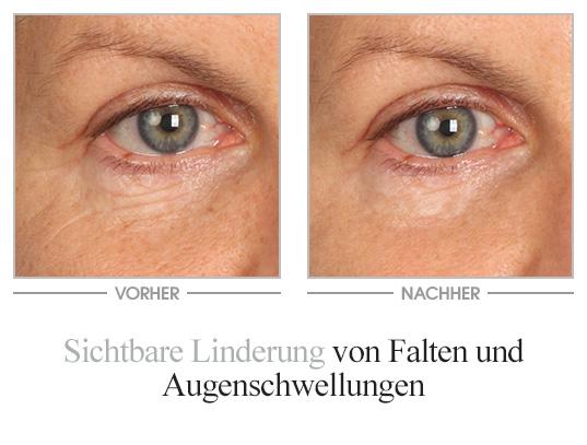 Vinolift Augenserum Vorher/Nachher