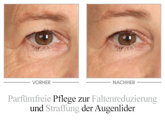 M. Asam Vinolift Augencreme Vorher-Nachher