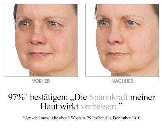 Vinolift Overnight Lift Peptide Essence - Vorher/Nachher Vergleich