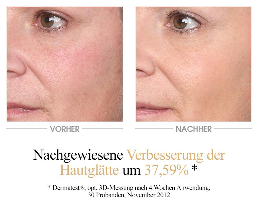 Vitamin E Testergebnis - 37,59% verbesserte Hautglätte