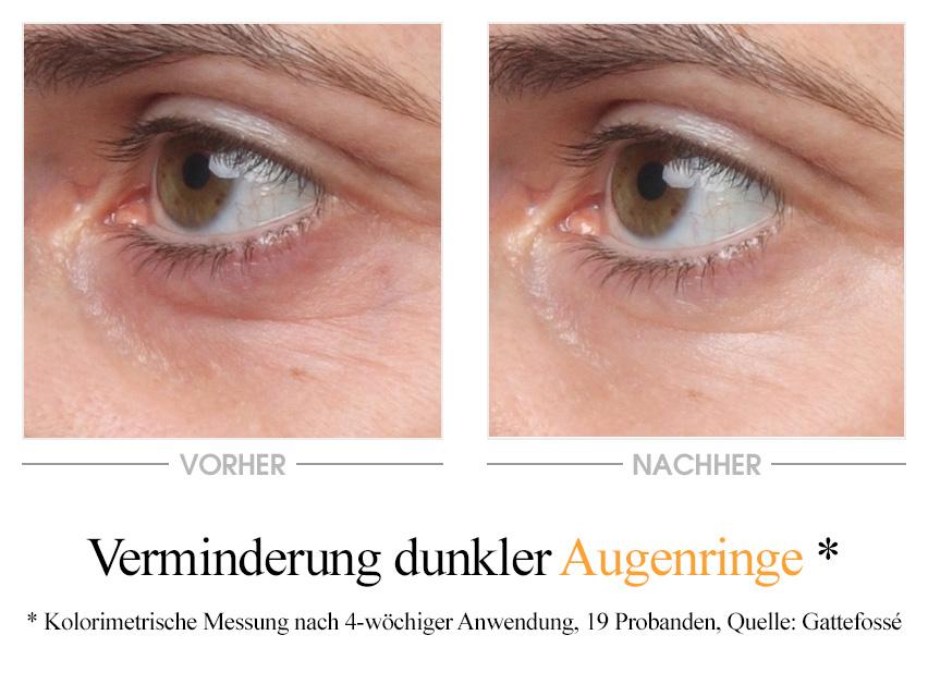 Pure Vitamins Augencreme - Vorher/Nachher Vergleich