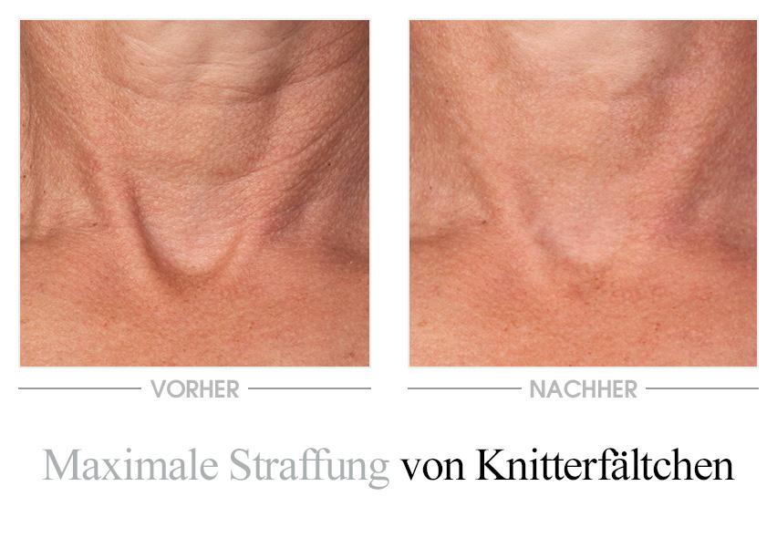 Vinolift Hals- und Dekolletécreme - Vorher/Nachher