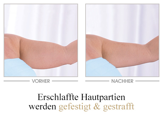 All-in-one Creme - Vorher/Nachher - Arm