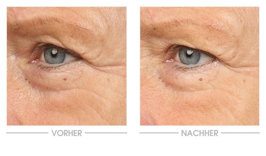 Vitamin E Augencreme Vorher-Nachher-Vergleich