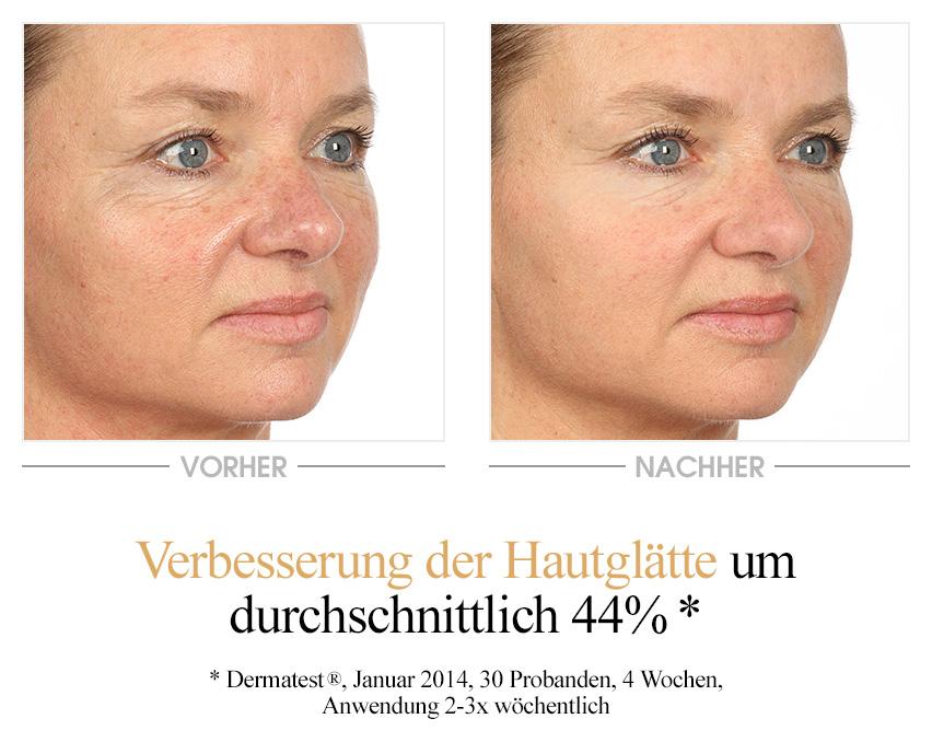 Vitamin E Hautglättungsmaske Vorher-Nachher-Vergleich