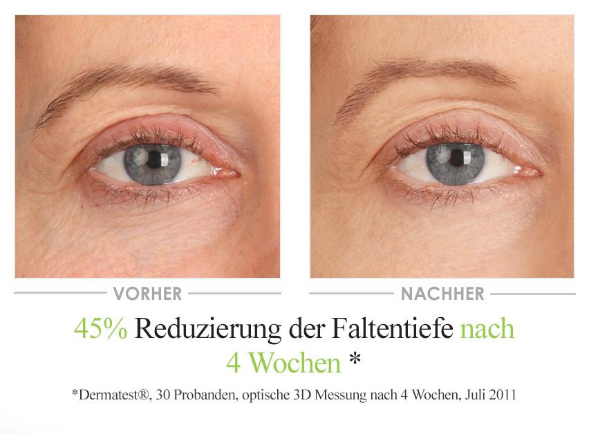 Vino Gold Augencreme Vorher-Nachher-Vergleich