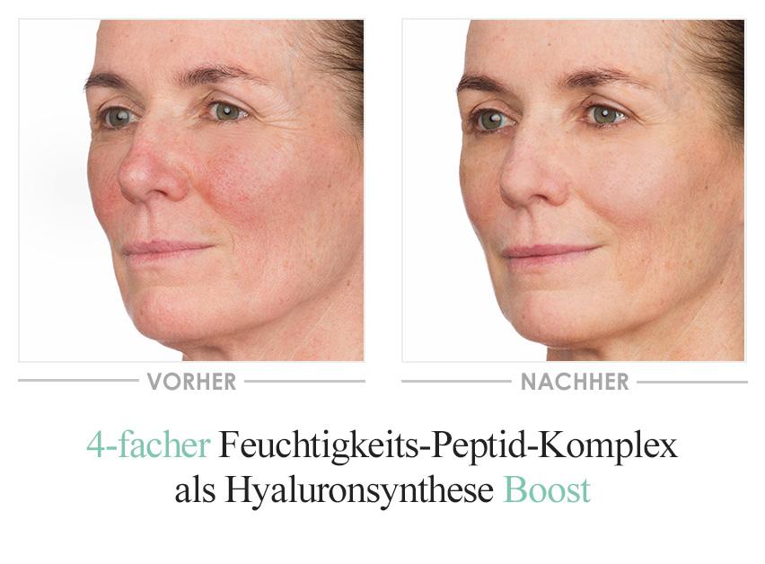 Hyaluron Rich Boost Serum - Vorher/Nachher