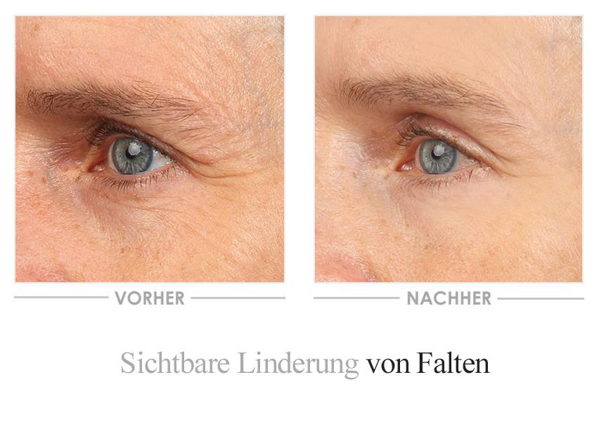 Vinolift Augencreme